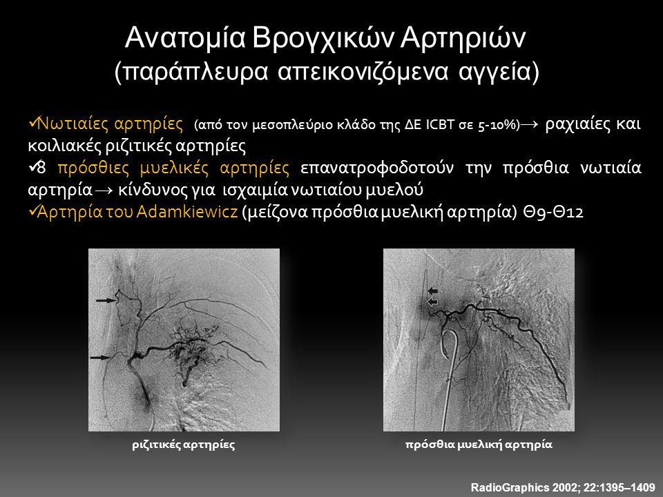πρόσθια μυελική αρτηρία