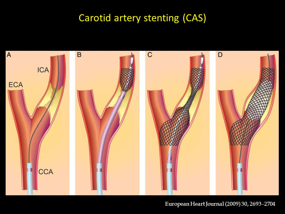 Carotid artery stenting (CAS)