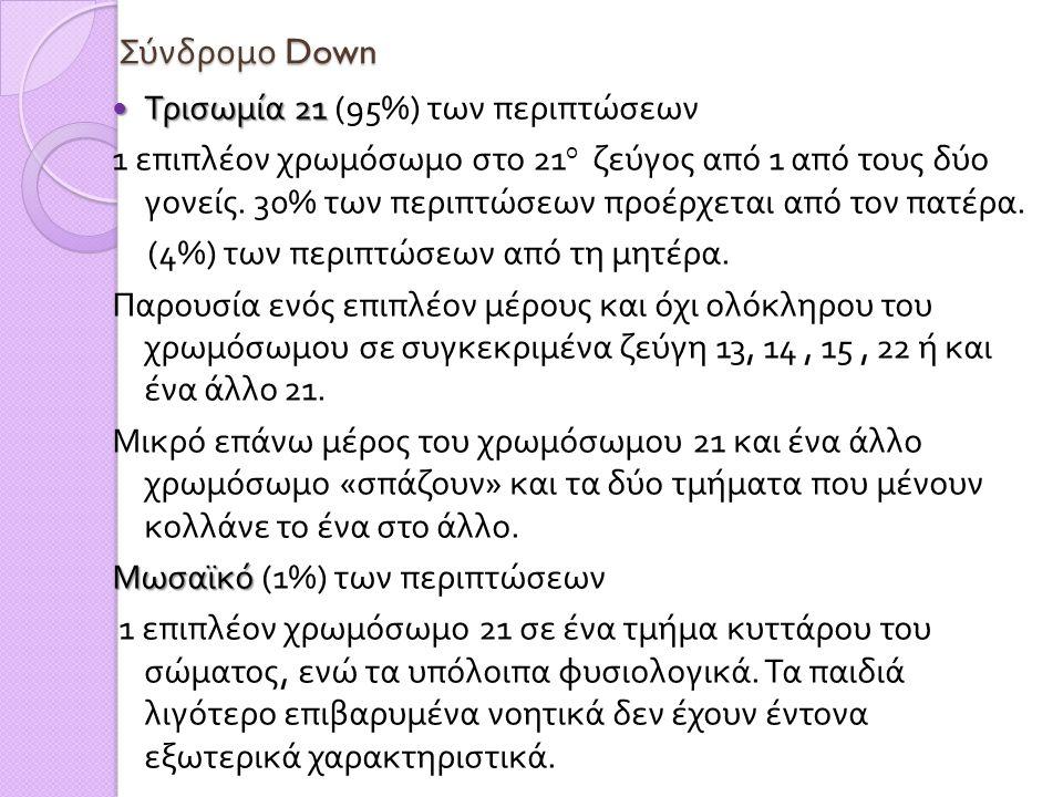 Σύνδρομο Down Τρισωμία 21 (95%) των περιπτώσεων