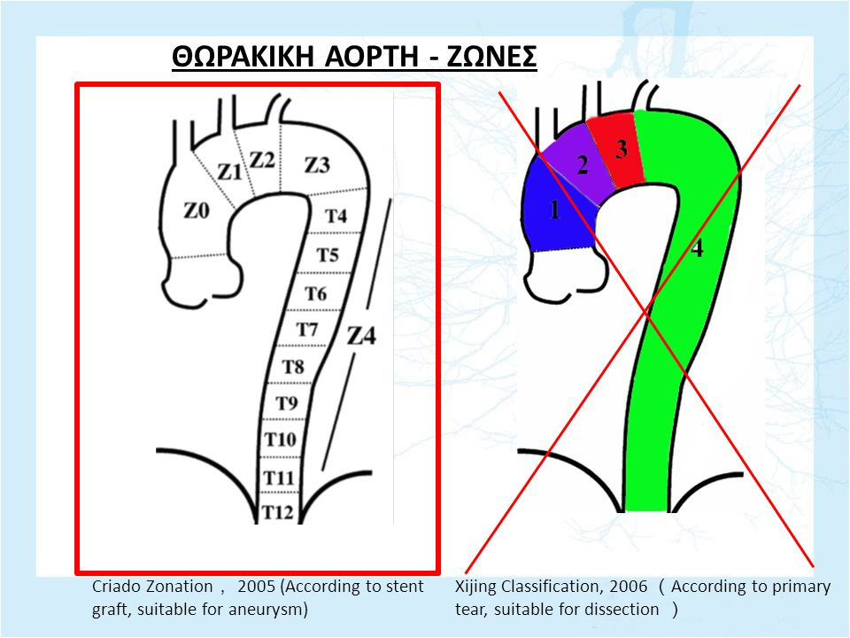 ΘΩΡΑΚΙΚΗ ΑΟΡΤΗ - ΖΩΝΕΣ Criado Zonation, 2005 (According to stent graft, suitable for aneurysm)