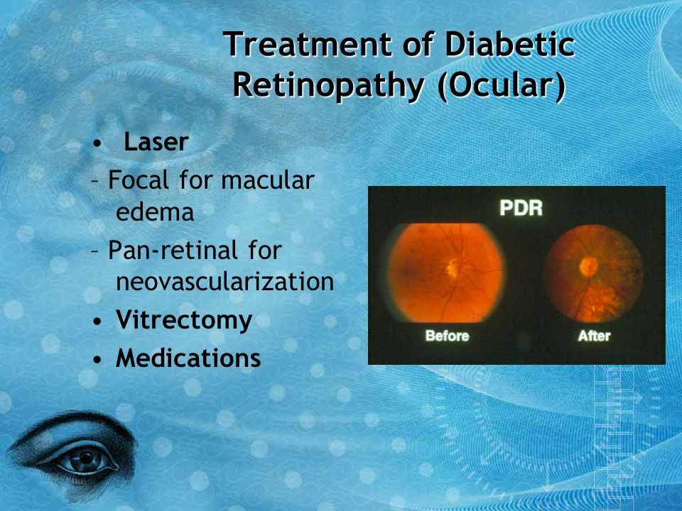 Treatment of Diabetic Retinopathy (Ocular)