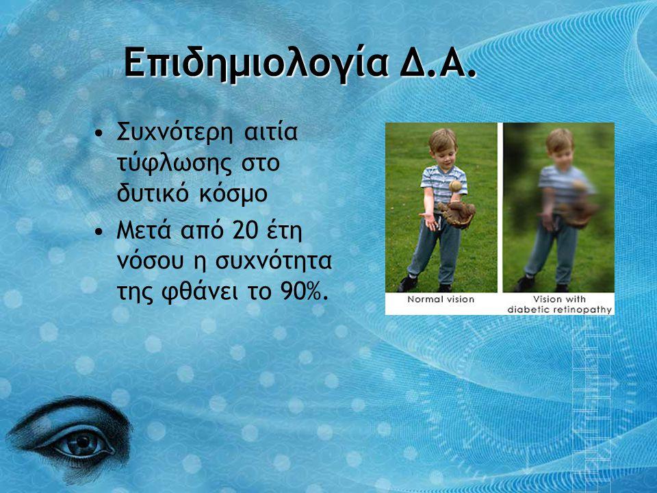Επιδημιολογία Δ.Α. Συχνότερη αιτία τύφλωσης στο δυτικό κόσμο