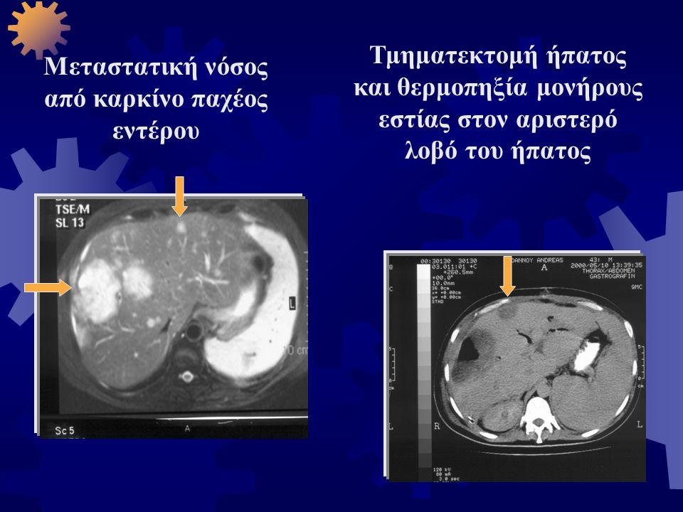 Μεταστατική νόσος από καρκίνο παχέος εντέρου