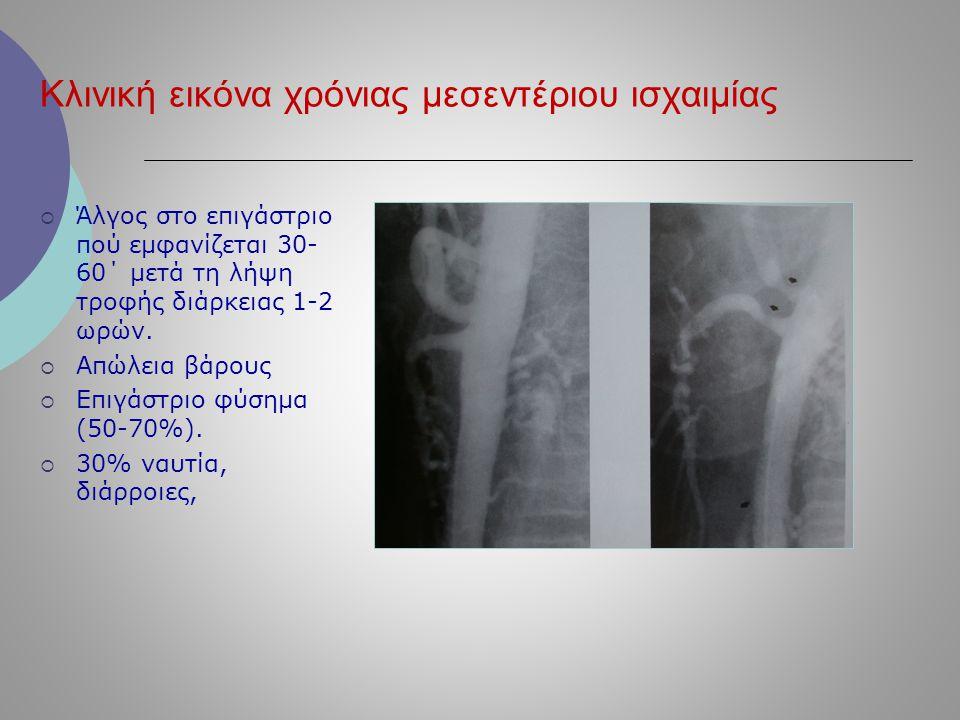Κλινική εικόνα χρόνιας μεσεντέριου ισχαιμίας