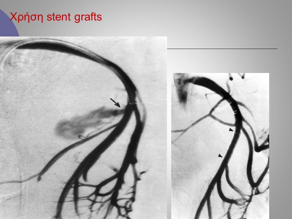 Χρήση stent grafts