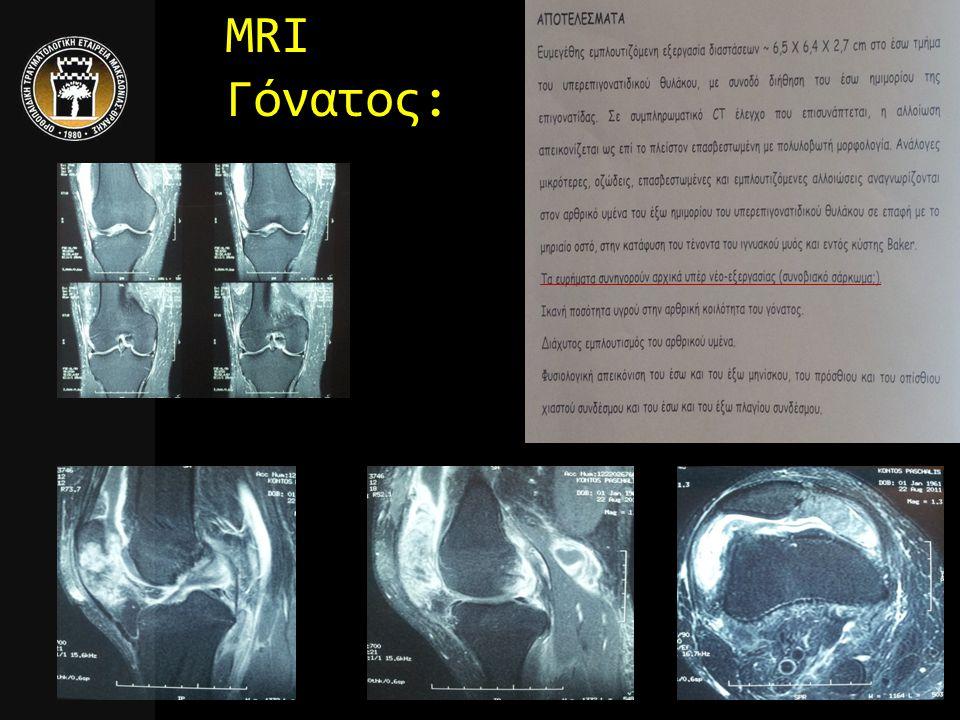 MRI Γόνατος: