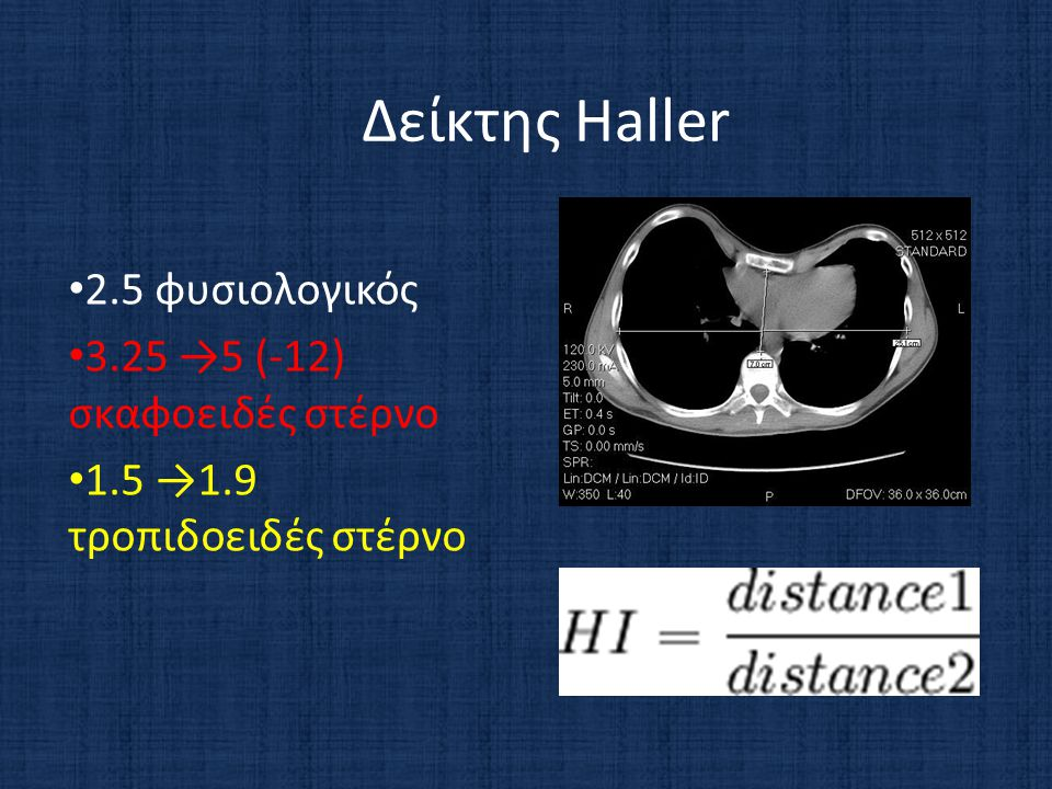Δείκτης Haller 2.5 φυσιολογικός 3.25 →5 (-12) σκαφοειδές στέρνο