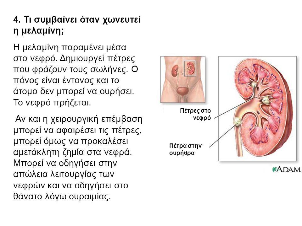 4. Τι συμβαίνει όταν χωνευτεί η μελαμίνη;