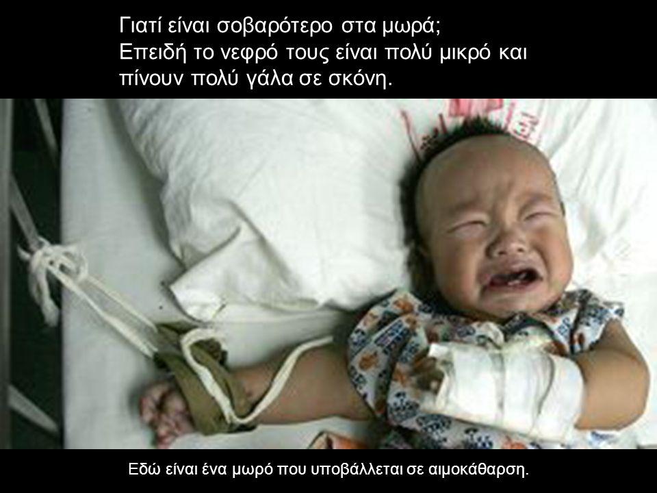 Εδώ είναι ένα μωρό που υποβάλλεται σε αιμοκάθαρση.