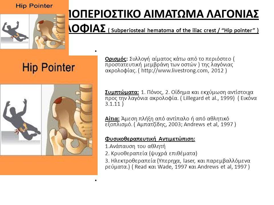 ΥΠΟΠΕΡΙΟΣΤΙΚΟ ΑΙΜΑΤΩΜΑ ΛΑΓΟΝΙΑΣ ΑΚΡΟΛΟΦΙΑΣ ( Subperiosteal hematoma of the iliac crest / Hip pointer )