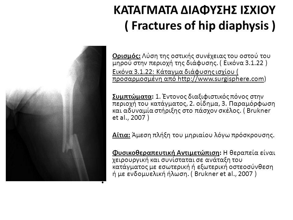 ΚΑΤΑΓΜΑΤΑ ΔΙΑΦΥΣΗΣ ΙΣΧΙΟΥ ( Fractures of hip diaphysis )