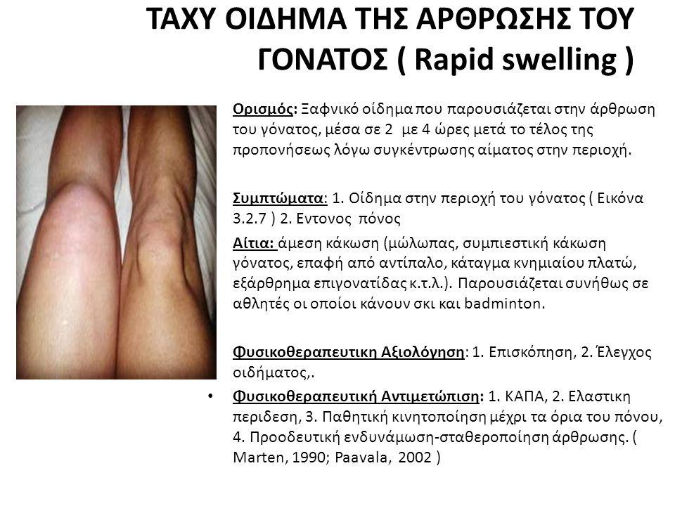 ΤΑΧΥ ΟΙΔΗΜΑ ΤΗΣ ΑΡΘΡΩΣΗΣ ΤΟΥ ΓΟΝΑΤΟΣ ( Rapid swelling )