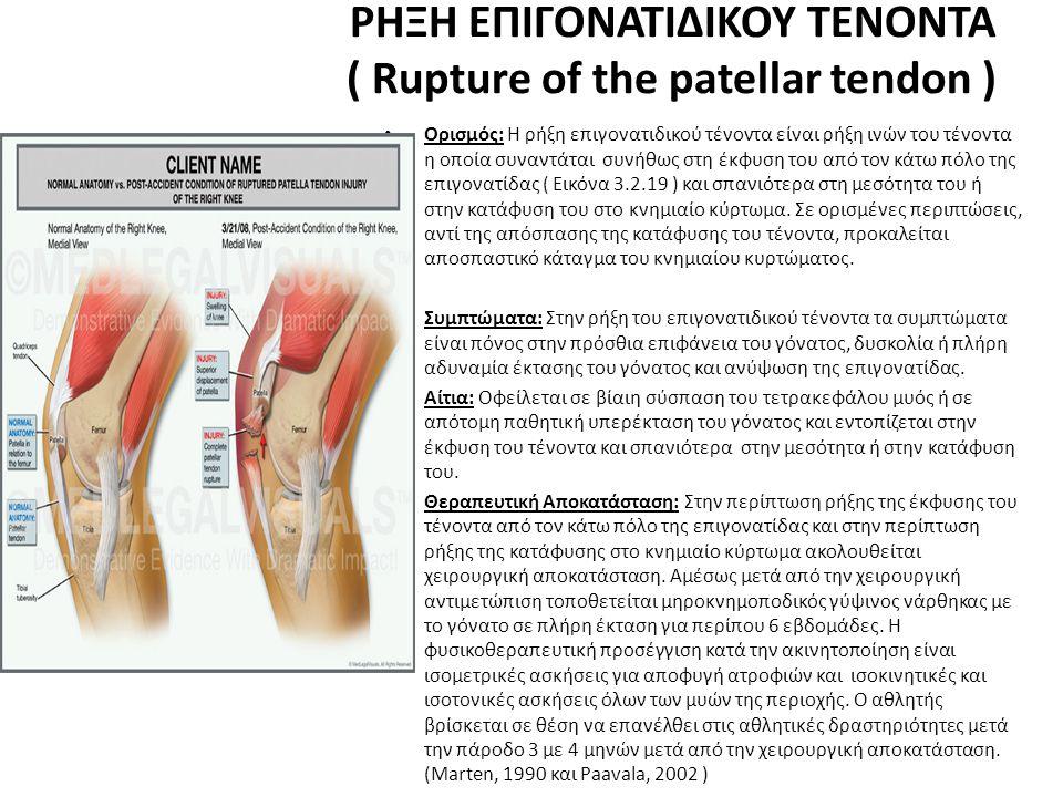 ΡΗΞΗ ΕΠΙΓΟΝΑΤΙΔΙΚΟΥ ΤΕΝΟΝΤΑ ( Rupture of the patellar tendon )