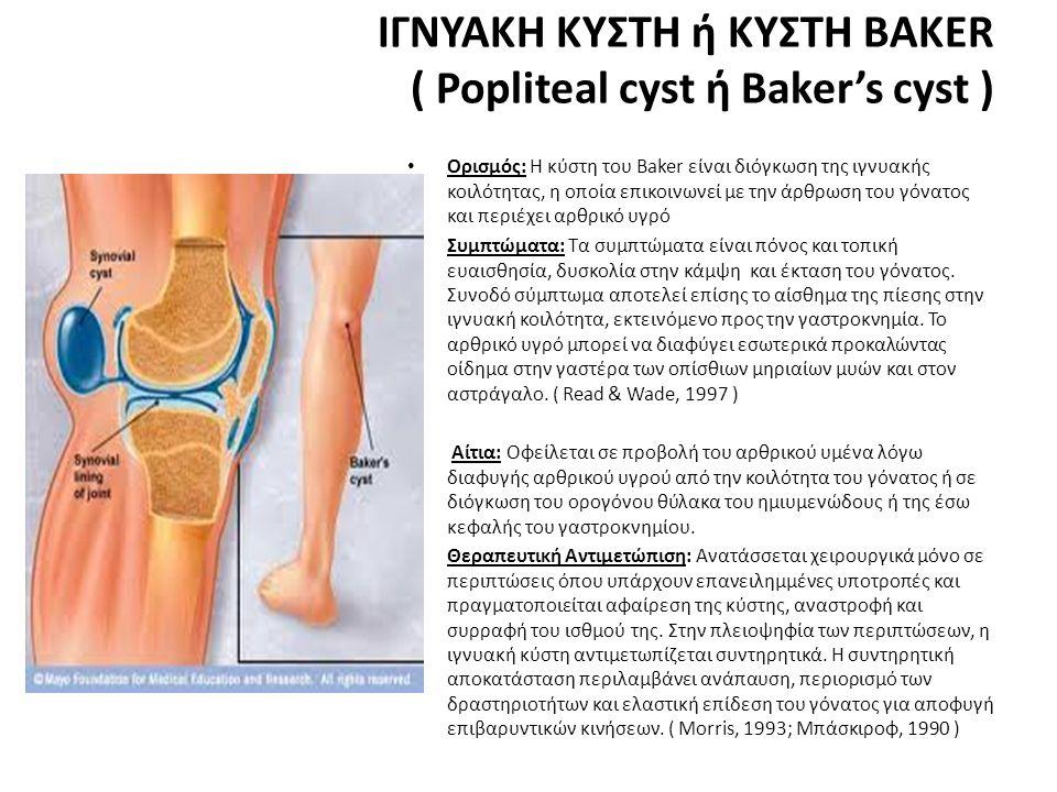 ΙΓΝΥΑΚΗ ΚΥΣΤΗ ή ΚΥΣΤΗ BAKER ( Popliteal cyst ή Baker's cyst )