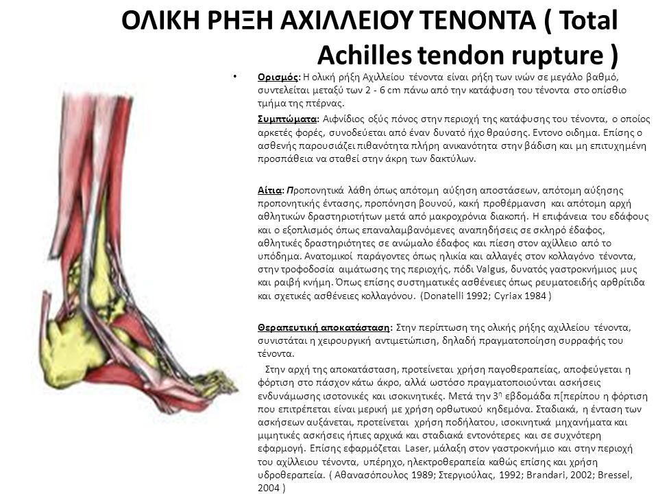ΟΛΙΚΗ ΡΗΞΗ ΑΧΙΛΛΕΙΟΥ ΤΕΝΟΝΤΑ ( Total Achilles tendon rupture )