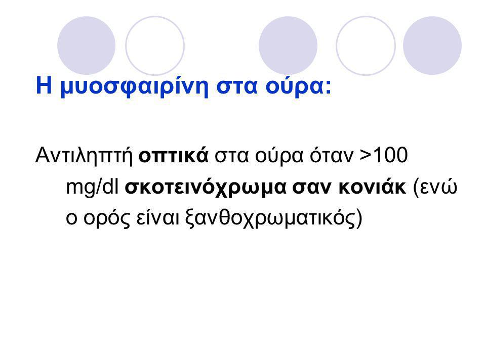 Η μυοσφαιρίνη στα ούρα: