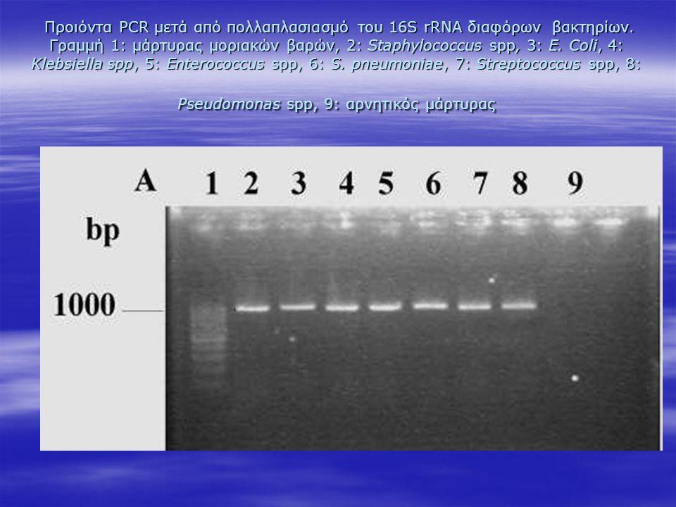 Προιόντα PCR μετά από πολλαπλασιασμό του 16S rRNA διαφόρων βακτηρίων