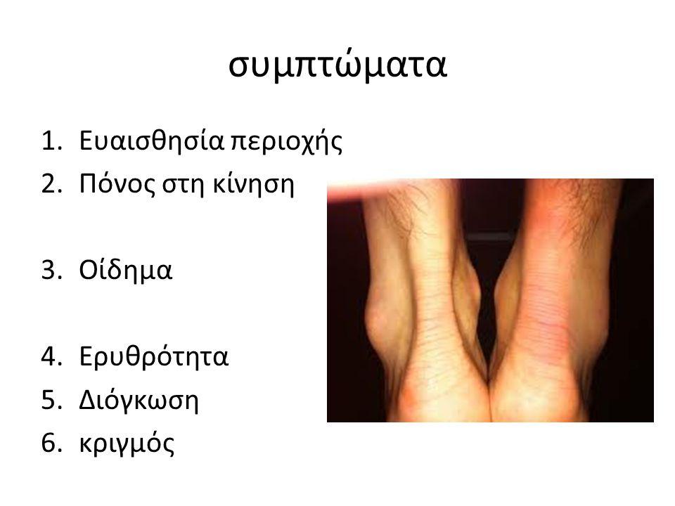 συμπτώματα Ευαισθησία περιοχής Πόνος στη κίνηση Οίδημα Ερυθρότητα
