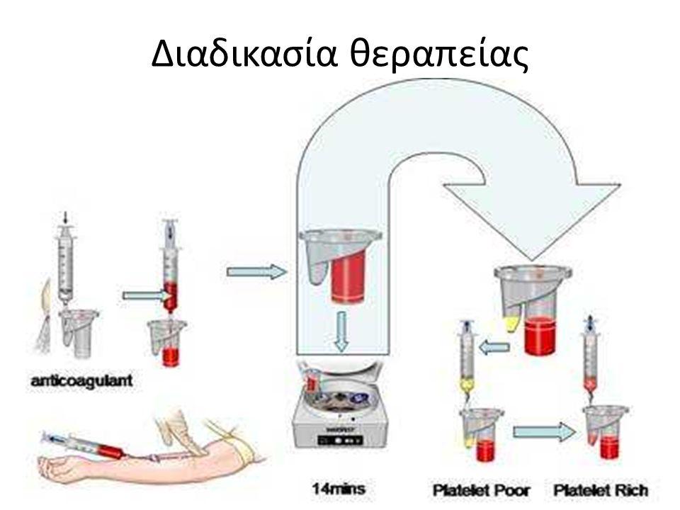 Διαδικασία θεραπείας