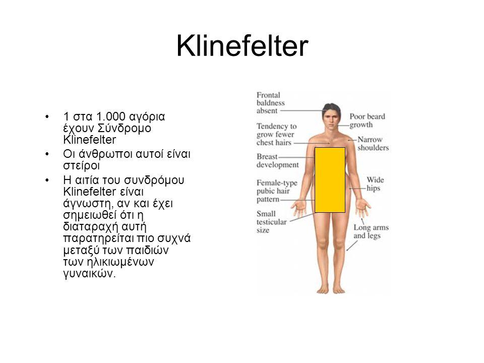 Klinefelter 1 στα 1.000 αγόρια έχουν Σύνδρομο Klinefelter
