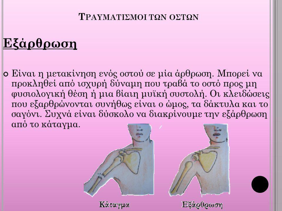 Τραυματισμοι των οστων