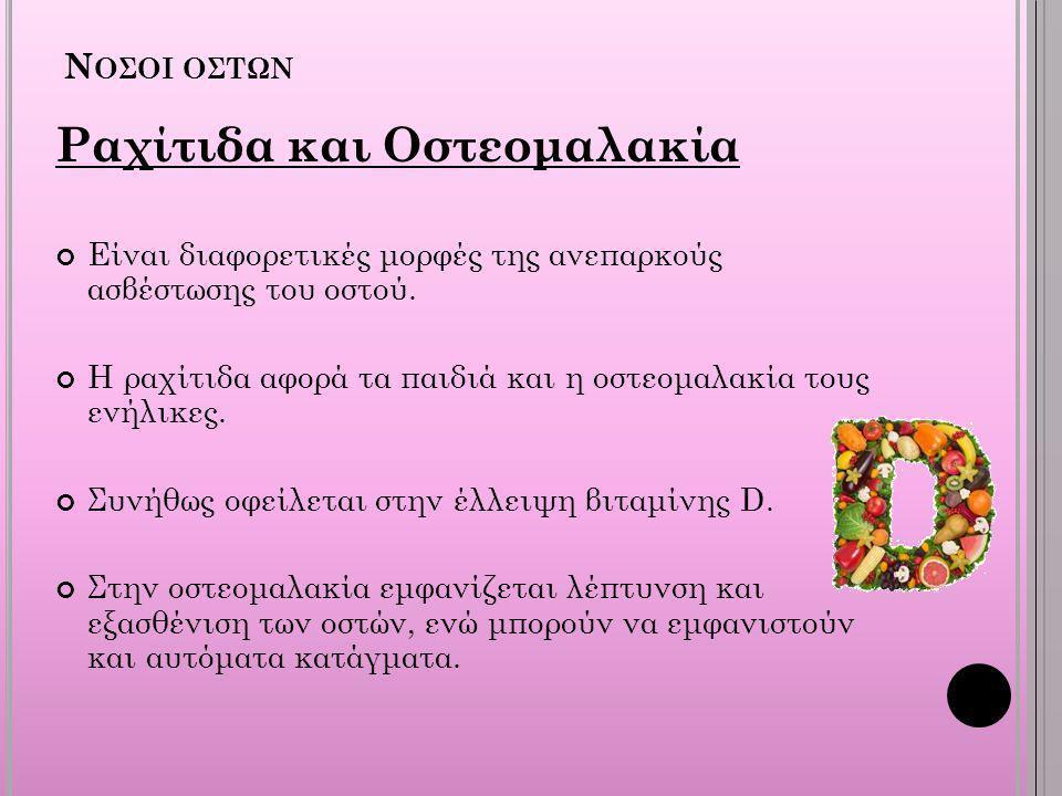 Ραχίτιδα και Οστεομαλακία
