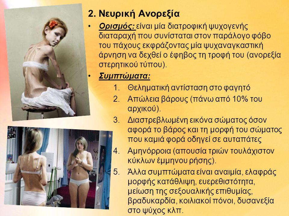 2. Νευρική Ανορεξία