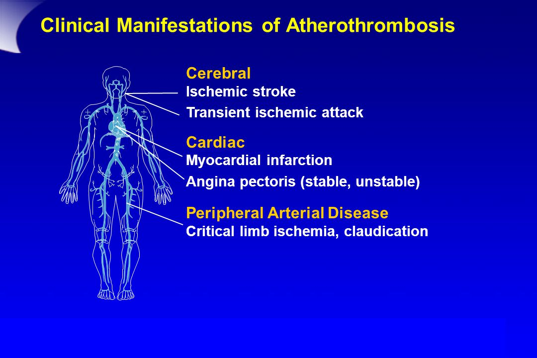 Clinical Manifestations of Atherothrombosis