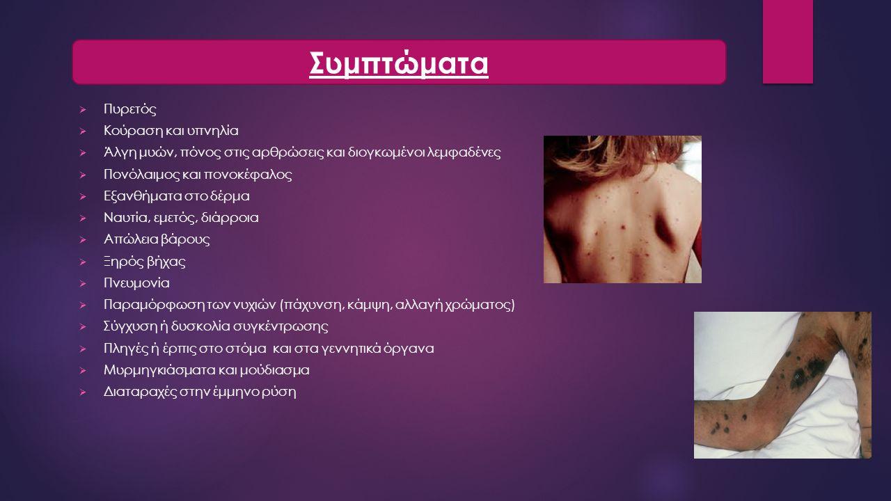 Συμπτώματα Πυρετός Κούραση και υπνηλία