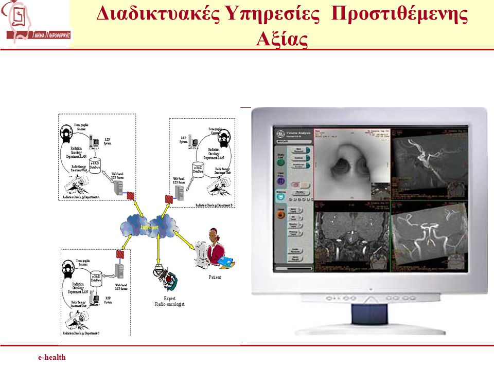 Τηλε-ακτινολογία