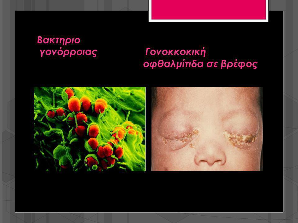Βακτηριο γονόρροιας Γονοκκοκική οφθαλμίτιδα σε βρέφος