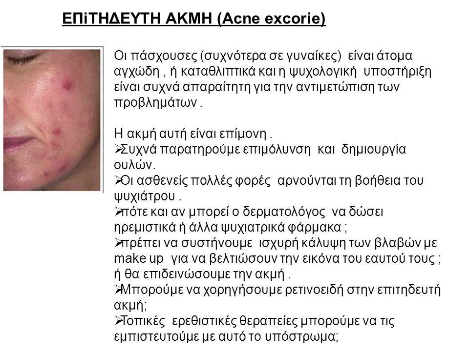 ΕΠiΤΗΔΕΥΤΗ ΑΚΜΗ (Acne excorie)