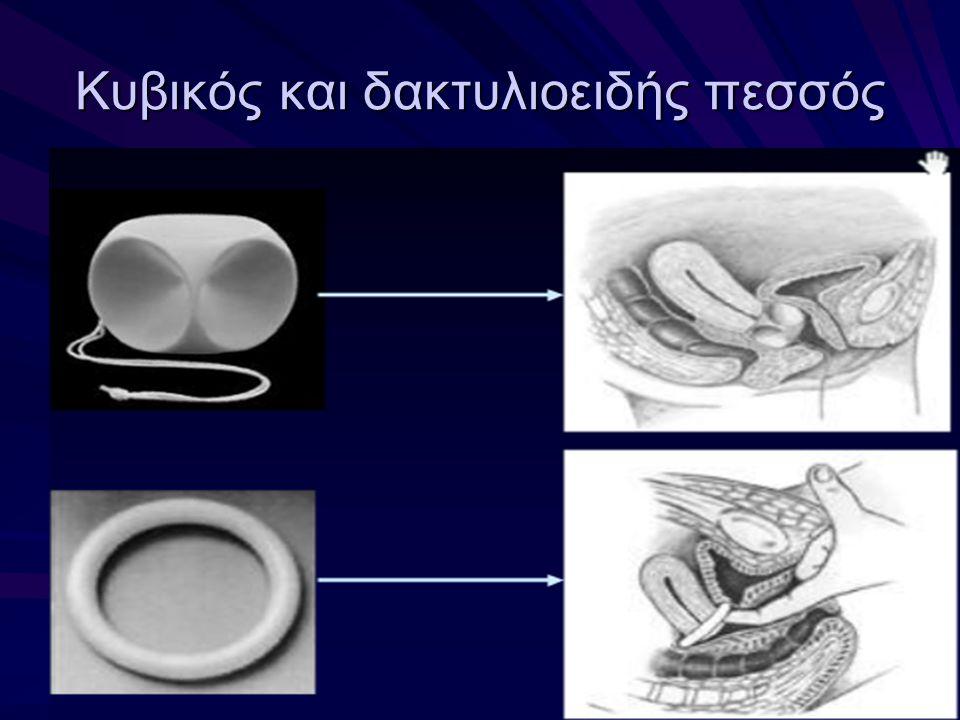 Κυβικός και δακτυλιοειδής πεσσός