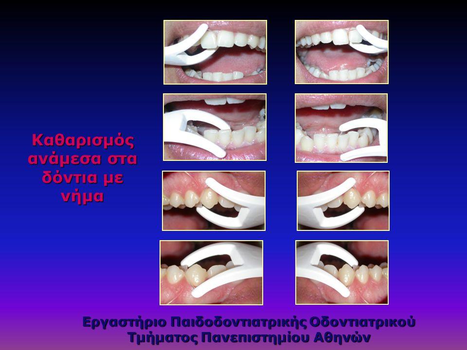 Καθαρισμός ανάμεσα στα δόντια με νήμα