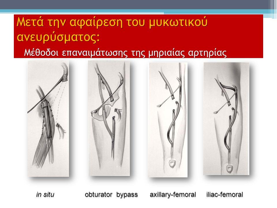 Μετά την αφαίρεση του μυκωτικού ανευρύσματος: Μέθοδοι επαναιμάτωσης της μηριαίας αρτηρίας