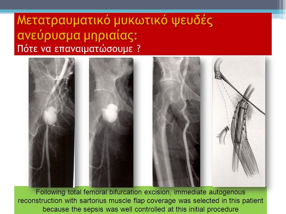 Μετατραυματικό μυκωτικό ψευδές ανεύρυσμα μηριαίας: Πότε να επαναιματώσουμε