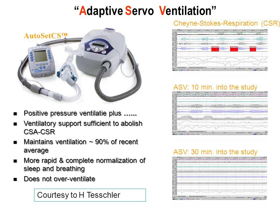 Adaptive Servo Ventilation