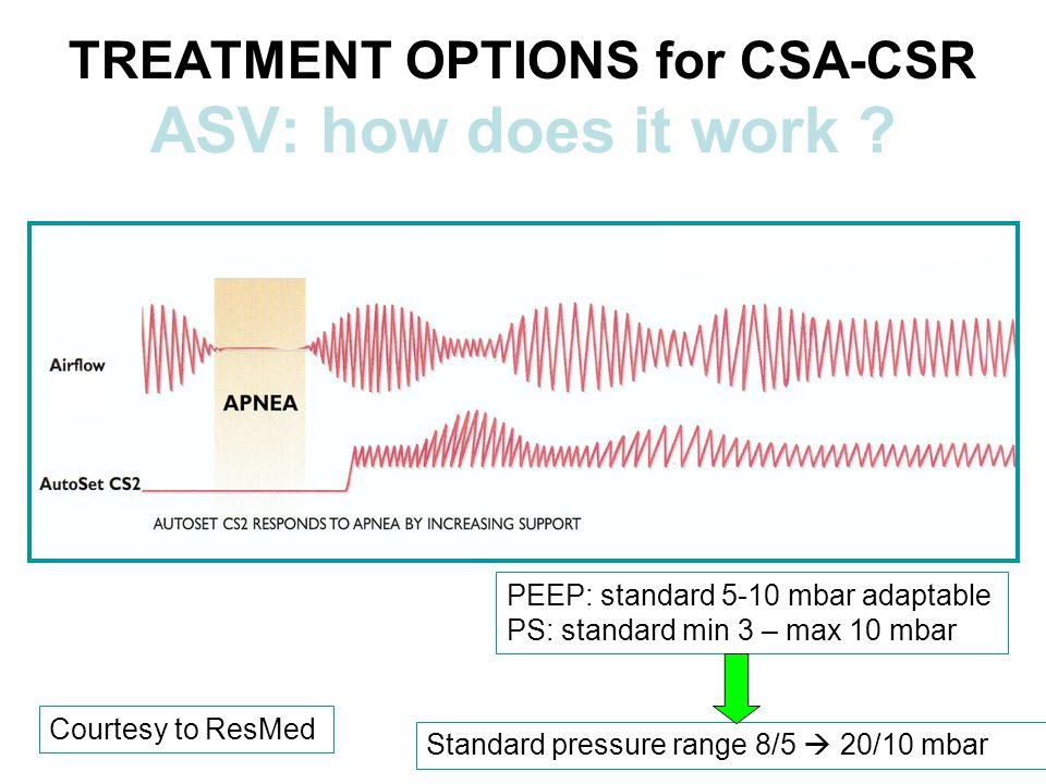 TREATMENT OPTIONS for CSA-CSR ASV: how does it work