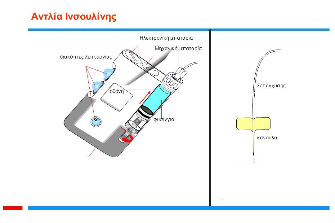 Αντλία Ινσουλίνης Ηλεκτρονική μπαταρία Μηχανική μπαταρία