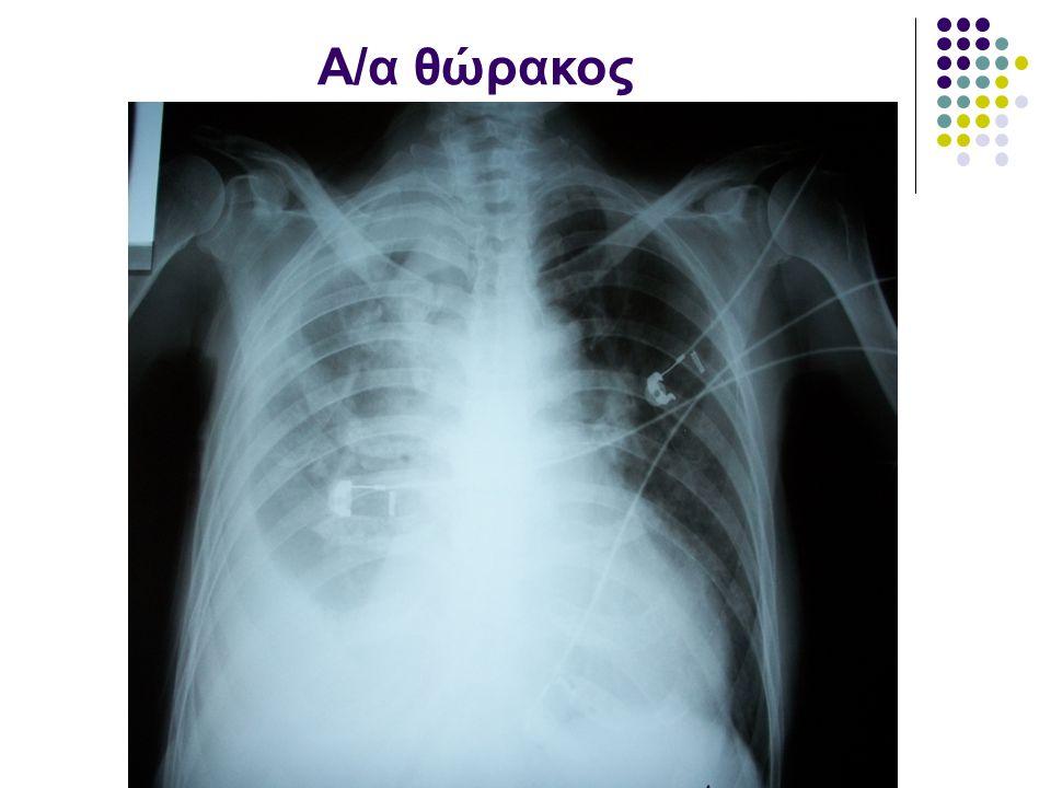 A/α θώρακος