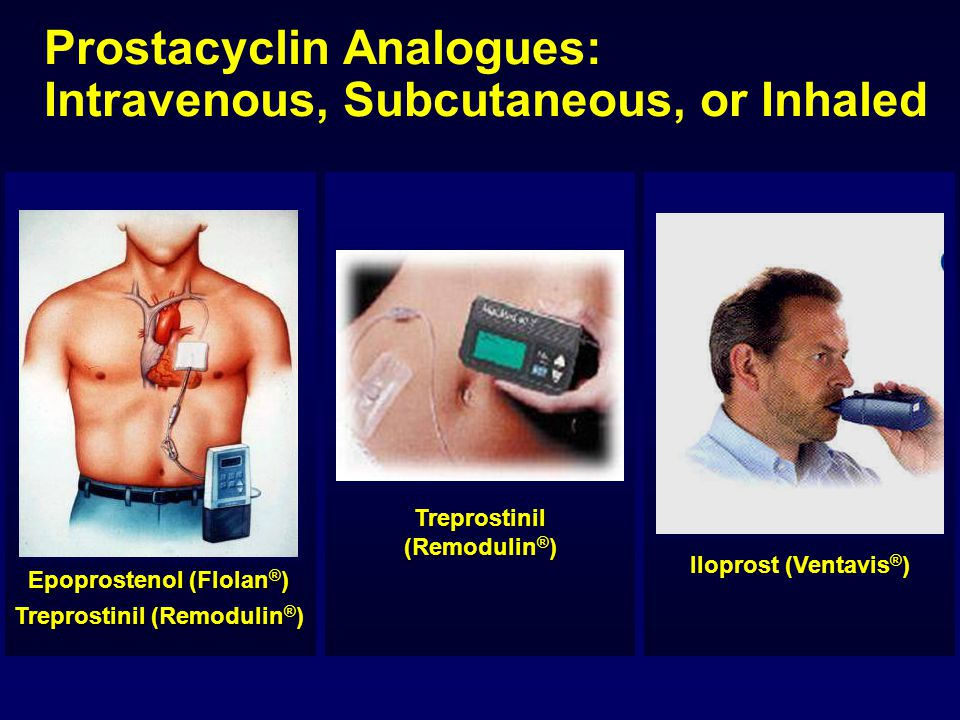 Prostacyclin Analogues: Intravenous, Subcutaneous, or Inhaled