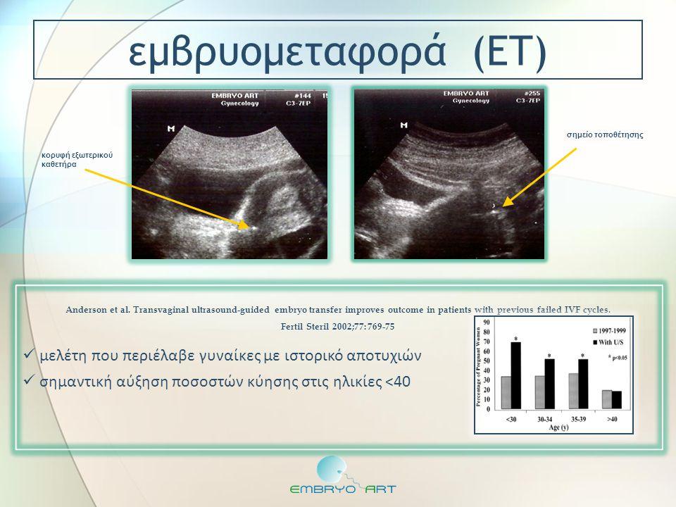 εμβρυομεταφορά (ΕΤ) σημείο τοποθέτησης. κορυφή εξωτερικού καθετήρα. μελέτη που περιέλαβε γυναίκες με ιστορικό αποτυχιών.