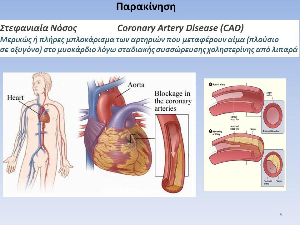Παρακίνηση Στεφανιαία Νόσος Coronary Artery Disease (CAD)