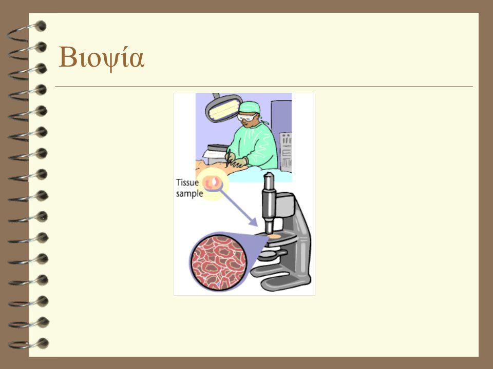 Βιοψία