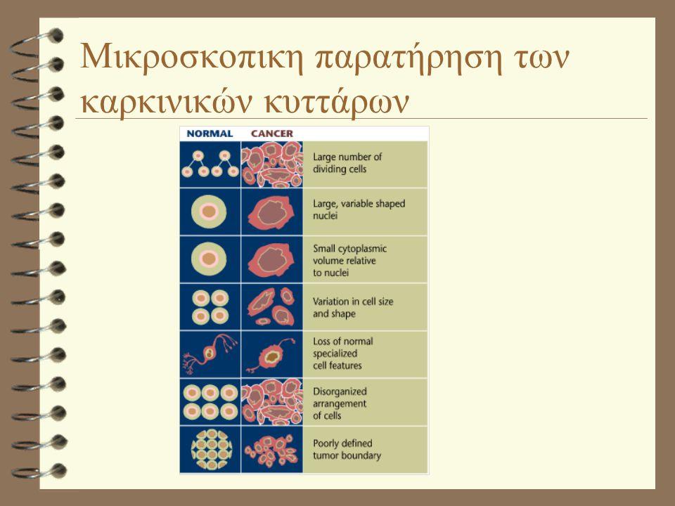 Μικροσκοπικη παρατήρηση των καρκινικών κυττάρων