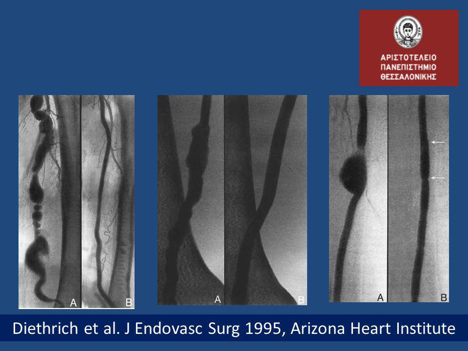 Diethrich et al. J Endovasc Surg 1995, Arizona Heart Institute