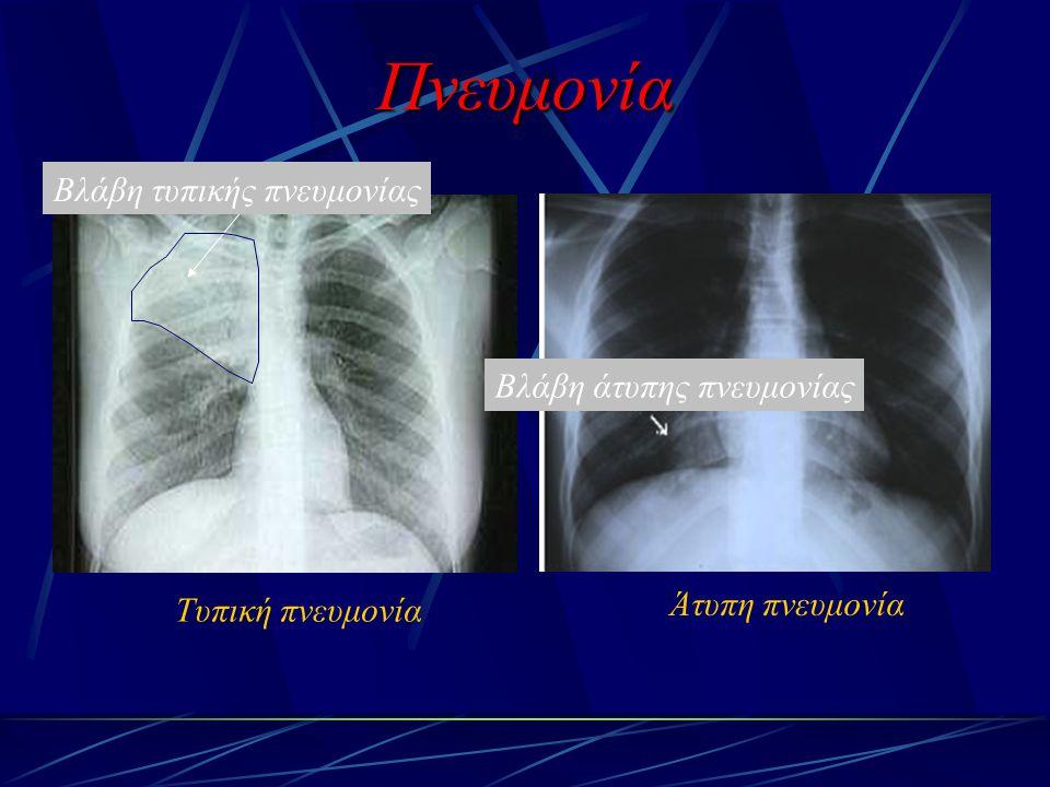 Πνευμονία Βλάβη τυπικής πνευμονίας Βλάβη άτυπης πνευμονίας