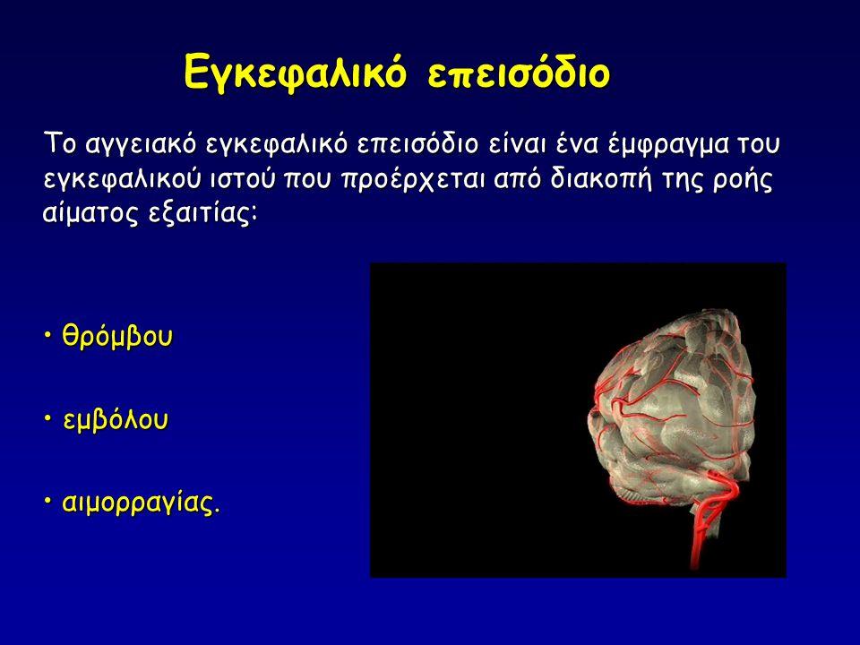 Εγκεφαλικό επεισόδιο Το αγγειακό εγκεφαλικό επεισόδιο είναι ένα έμφραγμα του εγκεφαλικού ιστού που προέρχεται από διακοπή της ροής αίματος εξαιτίας: