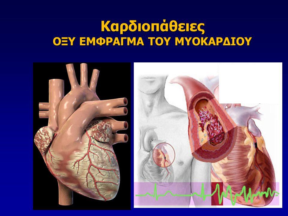 Καρδιοπάθειες ΟΞΥ ΕΜΦΡΑΓΜΑ ΤΟΥ ΜΥΟΚΑΡΔΙΟΥ