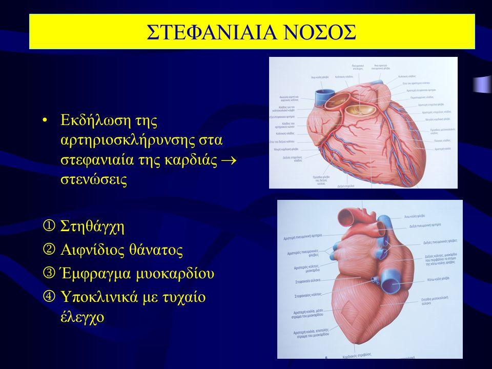 ΣΤΕΦΑΝΙΑΙΑ ΝΟΣΟΣ Εκδήλωση της αρτηριοσκλήρυνσης στα στεφανιαία της καρδιάς  στενώσεις.  Στηθάγχη.